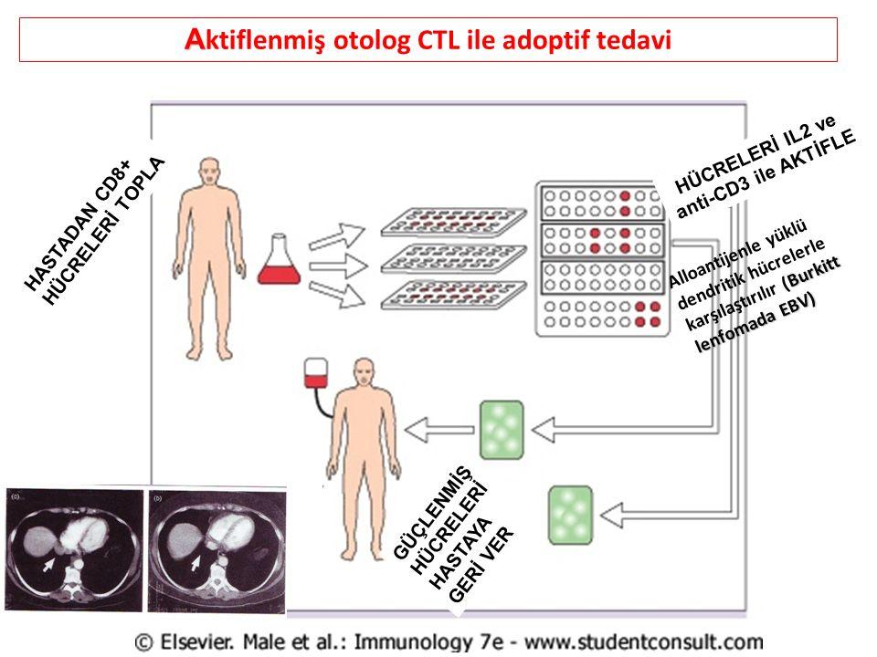 A A ktiflenmiş otolog CTL ile adoptif tedavi HASTADAN CD8+ HÜCRELERİ TOPLA HÜCRELERİ IL2 ve anti-CD3 ile AKTİFLE GÜÇLENMİŞ HÜCRELERİ HASTAYA GERİ VER