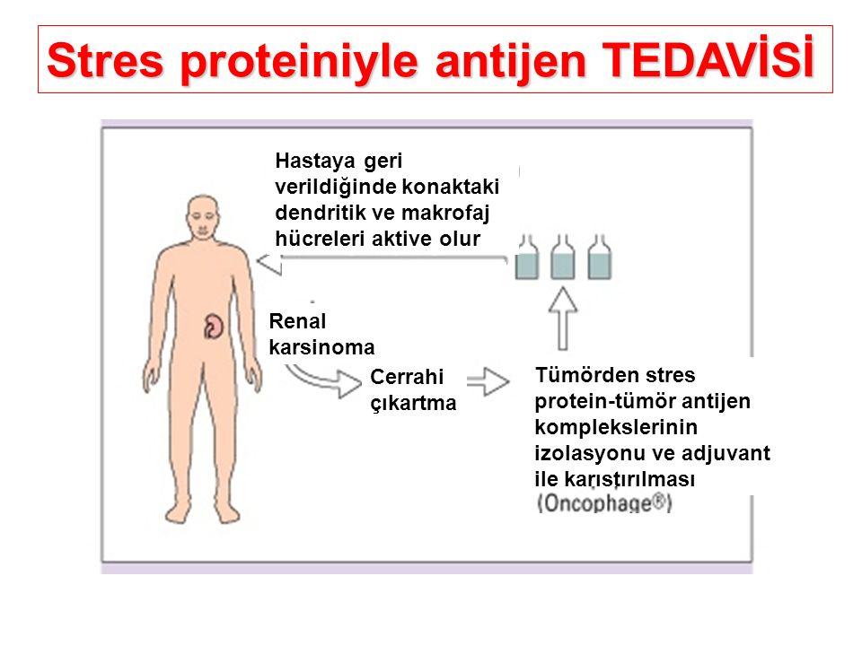 Stres proteiniyle antijen TEDAVİSİ Hastaya geri verildiğinde konaktaki dendritik ve makrofaj hücreleri aktive olur Renal karsinoma Cerrahi çıkartma Tü
