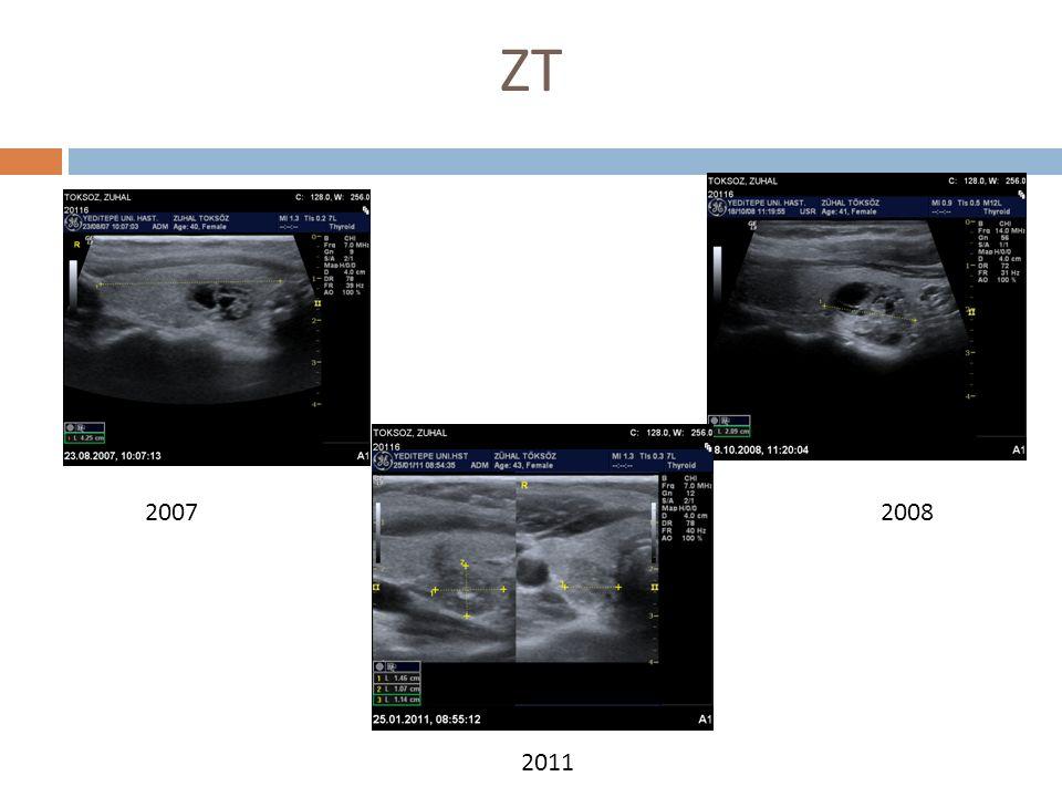 2007 Boyun ağrısı nedeniyle çekilen MRI da tiroidde nodüller görülmesi sebebiyle başvurdu FM  Tiroid nonpalpabl TSH-1,24, T3-1,3, T4-10,12, TPO-5,67, ATG-<10 B.Z.C.