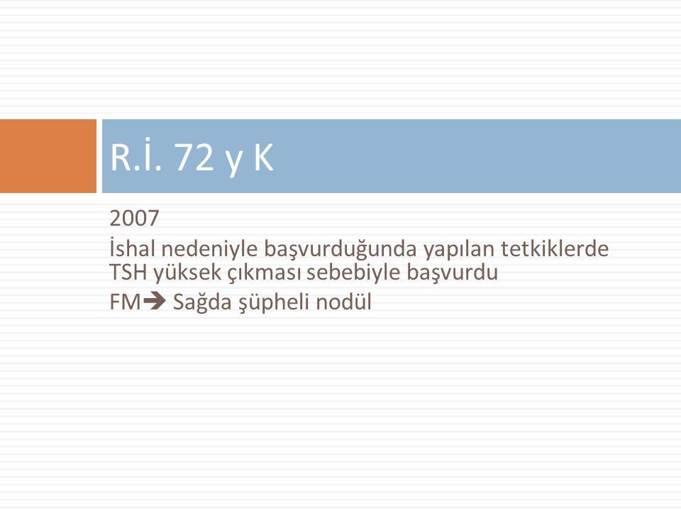 2007 İshal nedeniyle başvurduğunda yapılan tetkiklerde TSH yüksek çıkması sebebiyle başvurdu FM  Sağda şüpheli nodül R.İ.