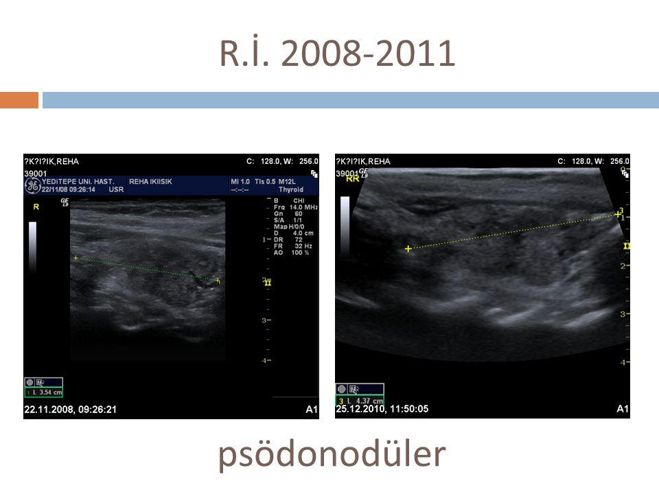 R.İ. 2008-2011 psödonodüler