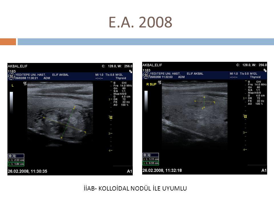 E.A., 18 ay sonra