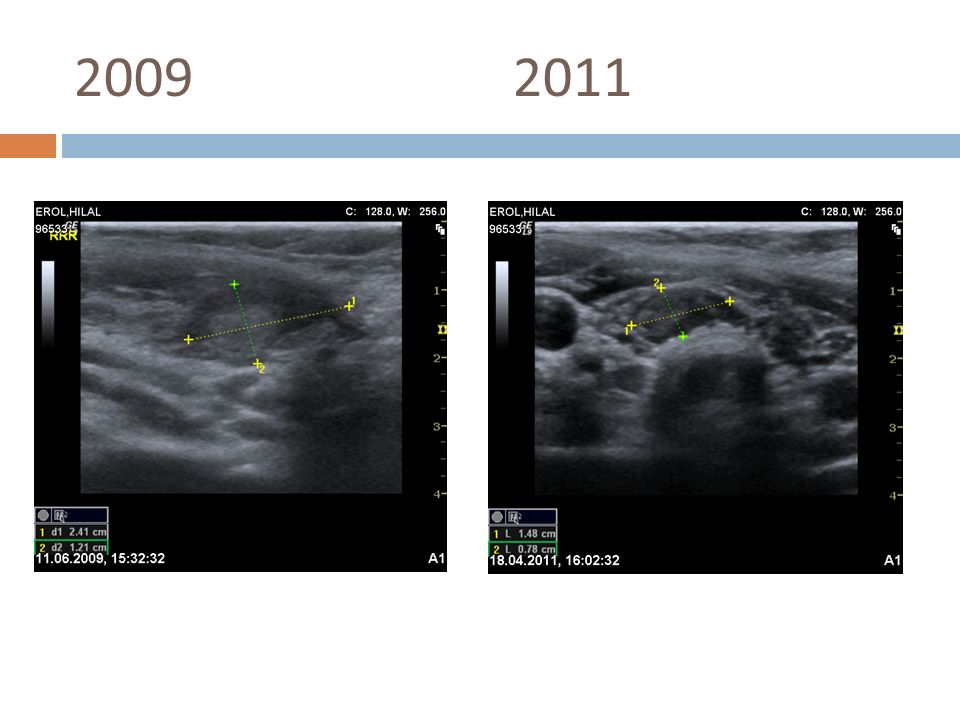 2008 1 aydır olan boyun şişliği FM  solda 2,5 cm nodül TSH-0,63, ST4-1,29, ST4-1,29 D.E. 37y K