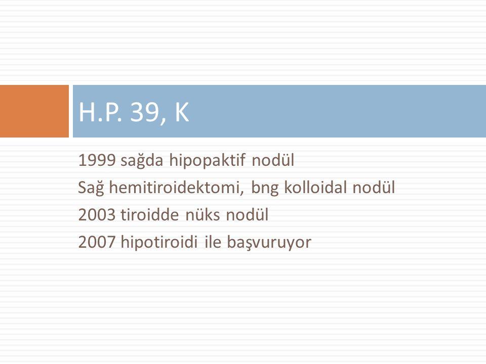 1999 sağda hipopaktif nodül Sağ hemitiroidektomi, bng kolloidal nodül 2003 tiroidde nüks nodül 2007 hipotiroidi ile başvuruyor H.P.