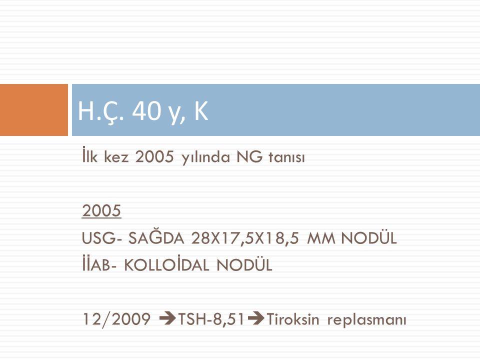 Ocak 2010  USG- Sağda 24x33 mm, solda 12x9 mm düzensiz sınırlı heterojen hipoekoik nodüller (soldaki nodül önceki incelemede yok)