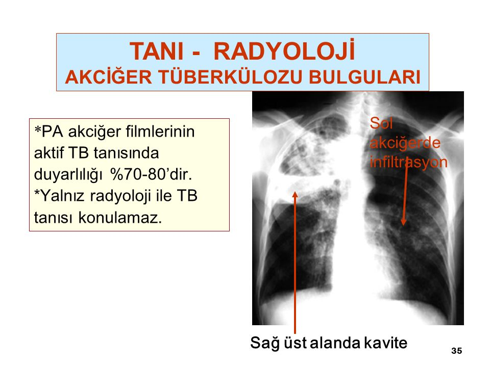 35 Sağ üst alanda kavite Sol akciğerde infiltrasyon * PA akciğer filmlerinin aktif TB tanısında duyarlılığı %70-80'dir.