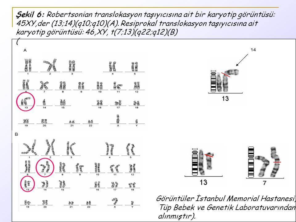 Şekil 6: Robertsonian translokasyon taşıyıcısına ait bir karyotip görüntüsü: 45XY,der (13;14)(q10;q10)(A).