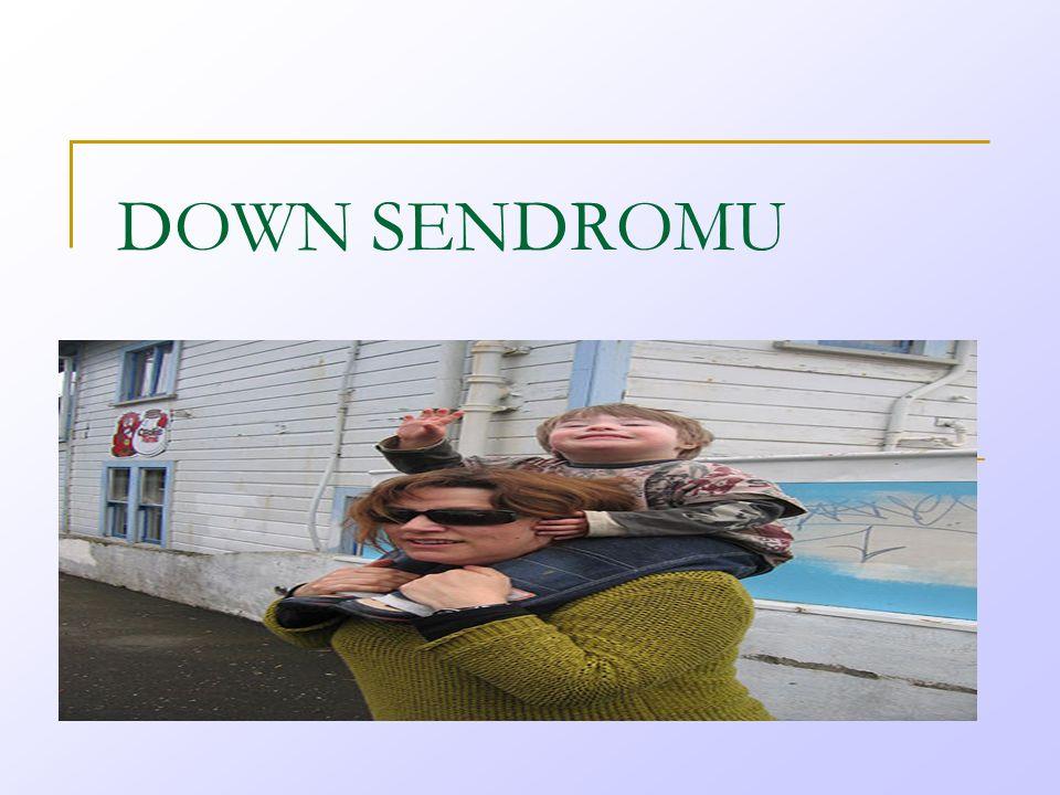 Ee DOWN SENDROMU