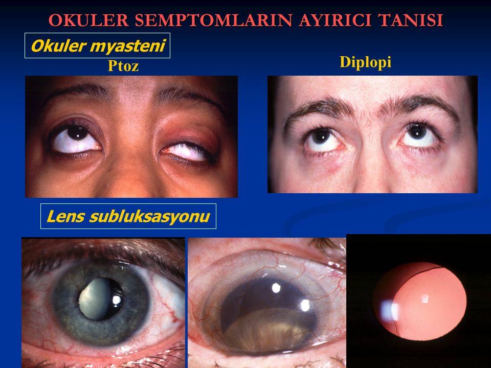 OKULER SEMPTOMLARIN AYIRICI TANISI Ptoz Diplopi Okuler myasteni Lens subluksasyonu