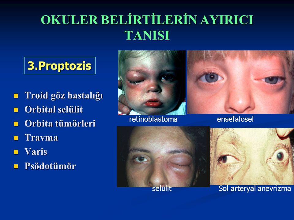 OKULER BELİRTİLERİN AYIRICI TANISI Troid göz hastalığı Troid göz hastalığı Orbital selülit Orbital selülit Orbita tümörleri Orbita tümörleri Travma Travma Varis Varis Psödotümör Psödotümör 3.Proptozis ensefaloselretinoblastoma Sol arteryal anevrizmaselülit