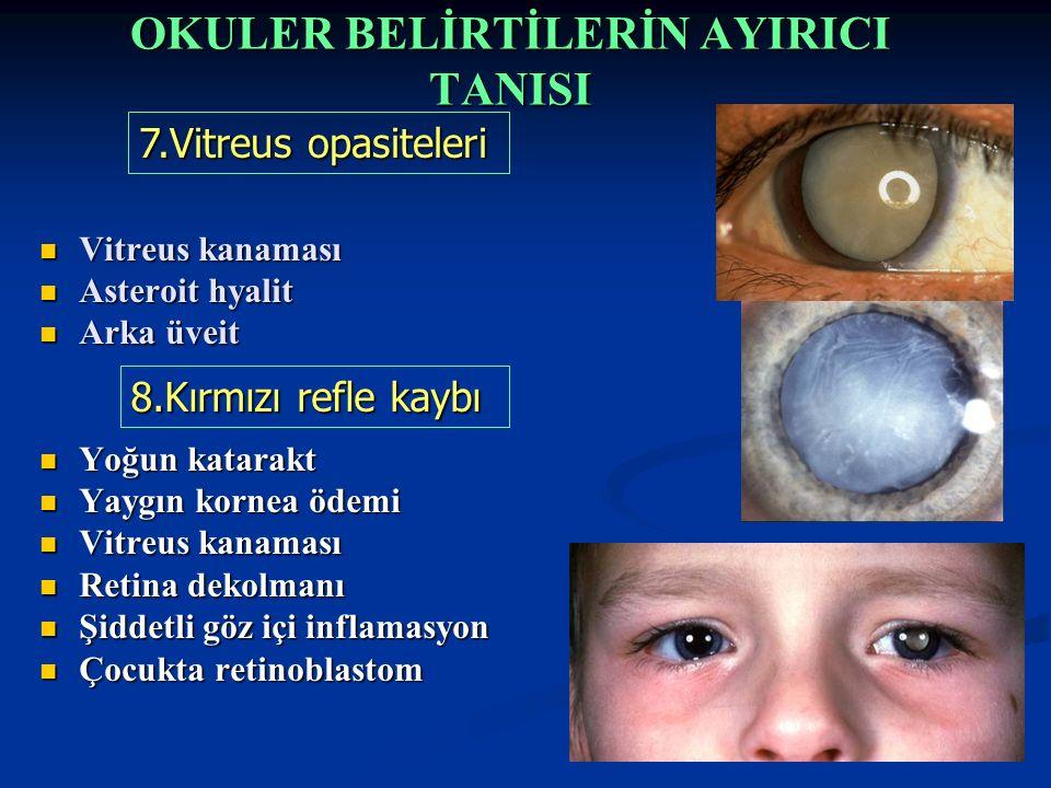 Vitreus kanaması Vitreus kanaması Asteroit hyalit Asteroit hyalit Arka üveit Arka üveit Yoğun katarakt Yoğun katarakt Yaygın kornea ödemi Yaygın kornea ödemi Vitreus kanaması Vitreus kanaması Retina dekolmanı Retina dekolmanı Şiddetli göz içi inflamasyon Şiddetli göz içi inflamasyon Çocukta retinoblastom Çocukta retinoblastom 7.Vitreus opasiteleri 8.Kırmızı refle kaybı