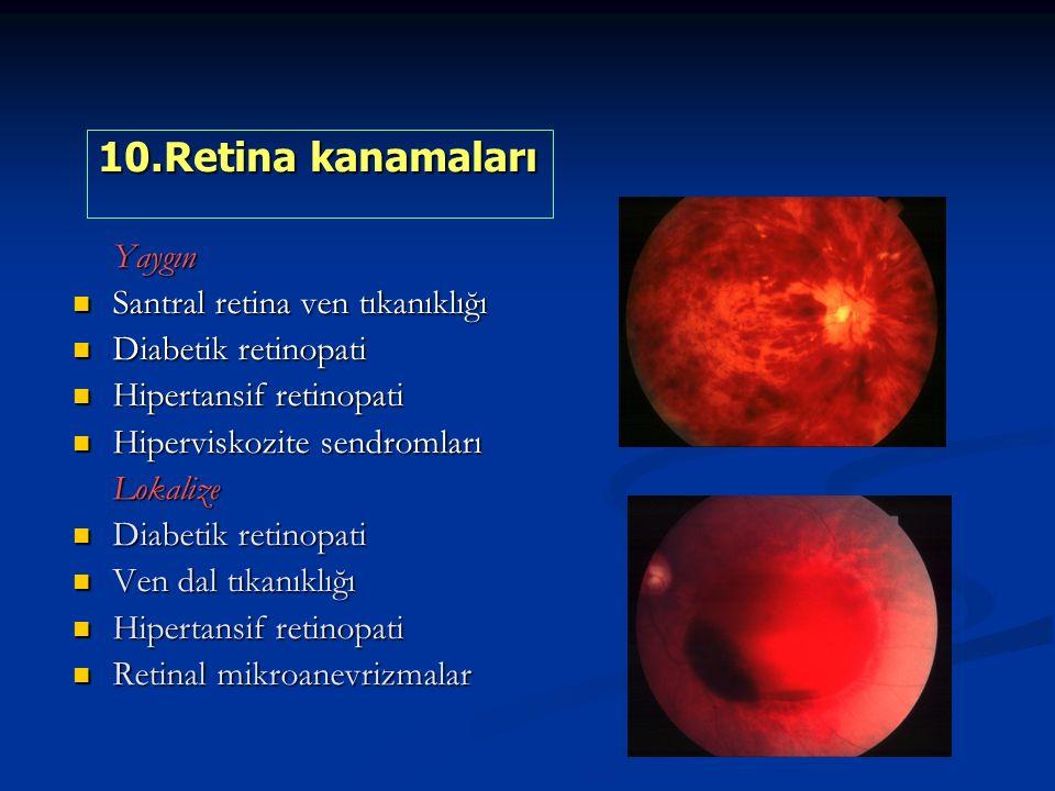Yaygın Santral retina ven tıkanıklığı Santral retina ven tıkanıklığı Diabetik retinopati Diabetik retinopati Hipertansif retinopati Hipertansif retinopati Hiperviskozite sendromları Hiperviskozite sendromlarıLokalize Diabetik retinopati Diabetik retinopati Ven dal tıkanıklığı Ven dal tıkanıklığı Hipertansif retinopati Hipertansif retinopati Retinal mikroanevrizmalar Retinal mikroanevrizmalar 10.Retina kanamaları