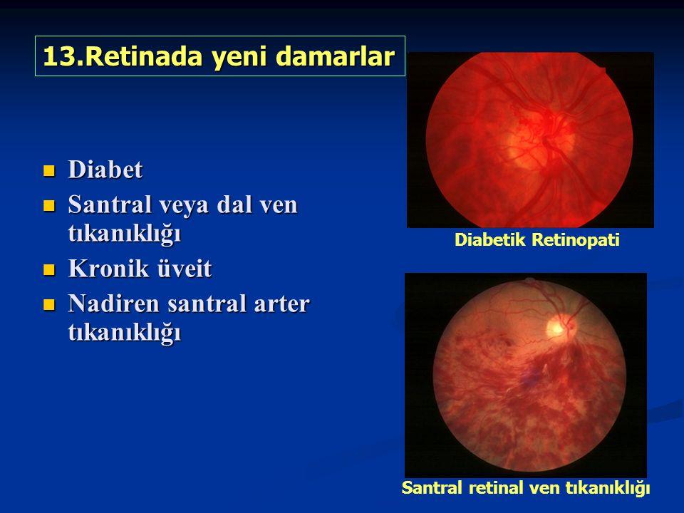Diabet Diabet Santral veya dal ven tıkanıklığı Santral veya dal ven tıkanıklığı Kronik üveit Kronik üveit Nadiren santral arter tıkanıklığı Nadiren santral arter tıkanıklığı 13.Retinada yeni damarlar Diabetik Retinopati Santral retinal ven tıkanıklığı
