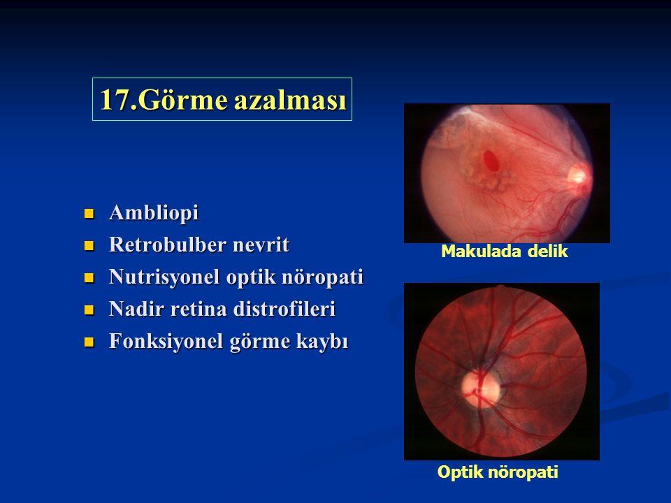 Ambliopi Ambliopi Retrobulber nevrit Retrobulber nevrit Nutrisyonel optik nöropati Nutrisyonel optik nöropati Nadir retina distrofileri Nadir retina distrofileri Fonksiyonel görme kaybı Fonksiyonel görme kaybı 17.Görme azalması Makulada delik Optik nöropati