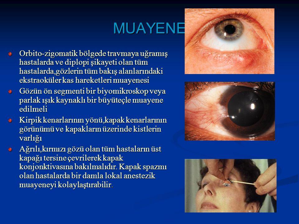 MUAYENE Orbito-zigomatik bölgede travmaya uğramış hastalarda ve diplopi şikayeti olan tüm hastalarda,gözlerin tüm bakış alanlarındaki ekstraoküler kas hareketleri muayenesi Gözün ön segmenti bir biyomikroskop veya parlak ışık kaynaklı bir büyüteçle muayene edilmeli Kirpik kenarlarının yönü,kapak kenarlarının görünümü ve kapakların üzerinde kistlerin varlığı Ağrılı,kırmızı gözü olan tüm hastaların üst kapağı tersine çevrilerek kapak konjonktivasına bakılmalıdır.