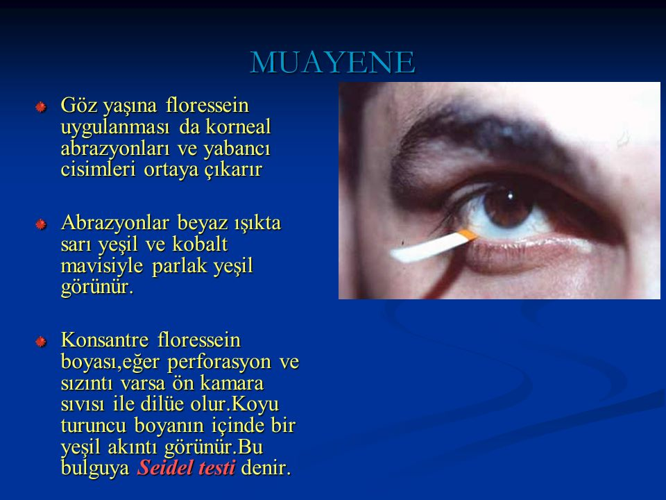 OKULER SEMPTOMLARIN AYIRICI TANISI Kırmızı göz All.konj Psödomembranöz konj Bakteriyel konj Neonatal konj Subkonj kanamaKorneal abrazyon