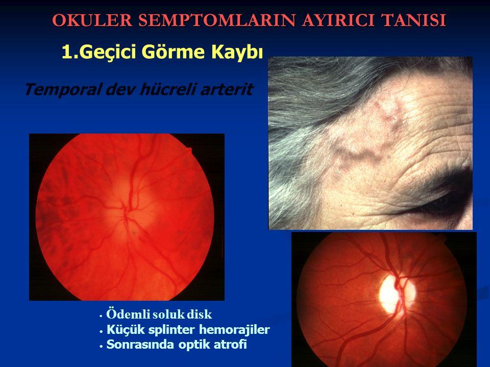OKULER SEMPTOMLARIN AYIRICI TANISI 1.Geçici Görme Kaybı Ödemli soluk disk Küçük splinter hemorajiler Sonrasında optik atrofi Temporal dev hücreli arterit