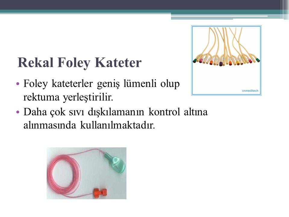 Rekal Foley Kateter Foley kateterler geniş lümenli olup rektuma yerleştirilir. Daha çok sıvı dışkılamanın kontrol altına alınmasında kullanılmaktadır.