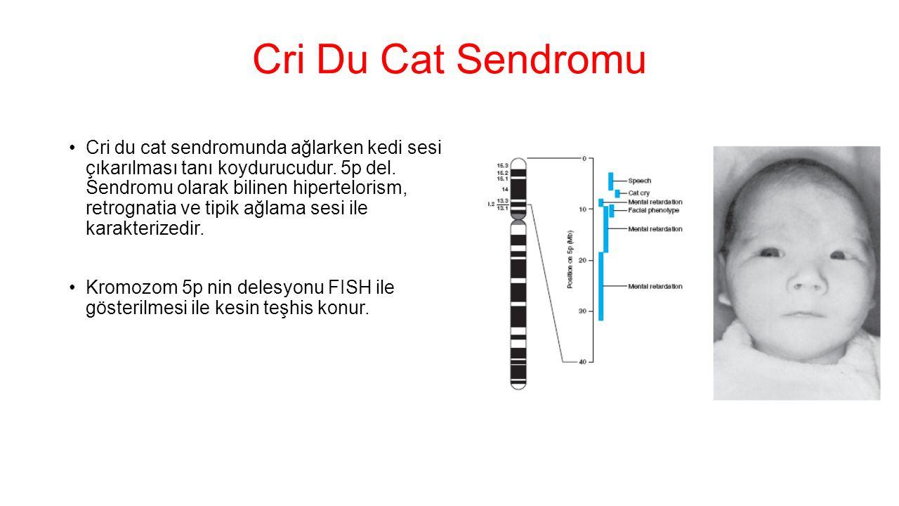Cri Du Cat Sendromu Cri du cat sendromunda ağlarken kedi sesi çıkarılması tanı koydurucudur. 5p del. Sendromu olarak bilinen hipertelorism, retrognati