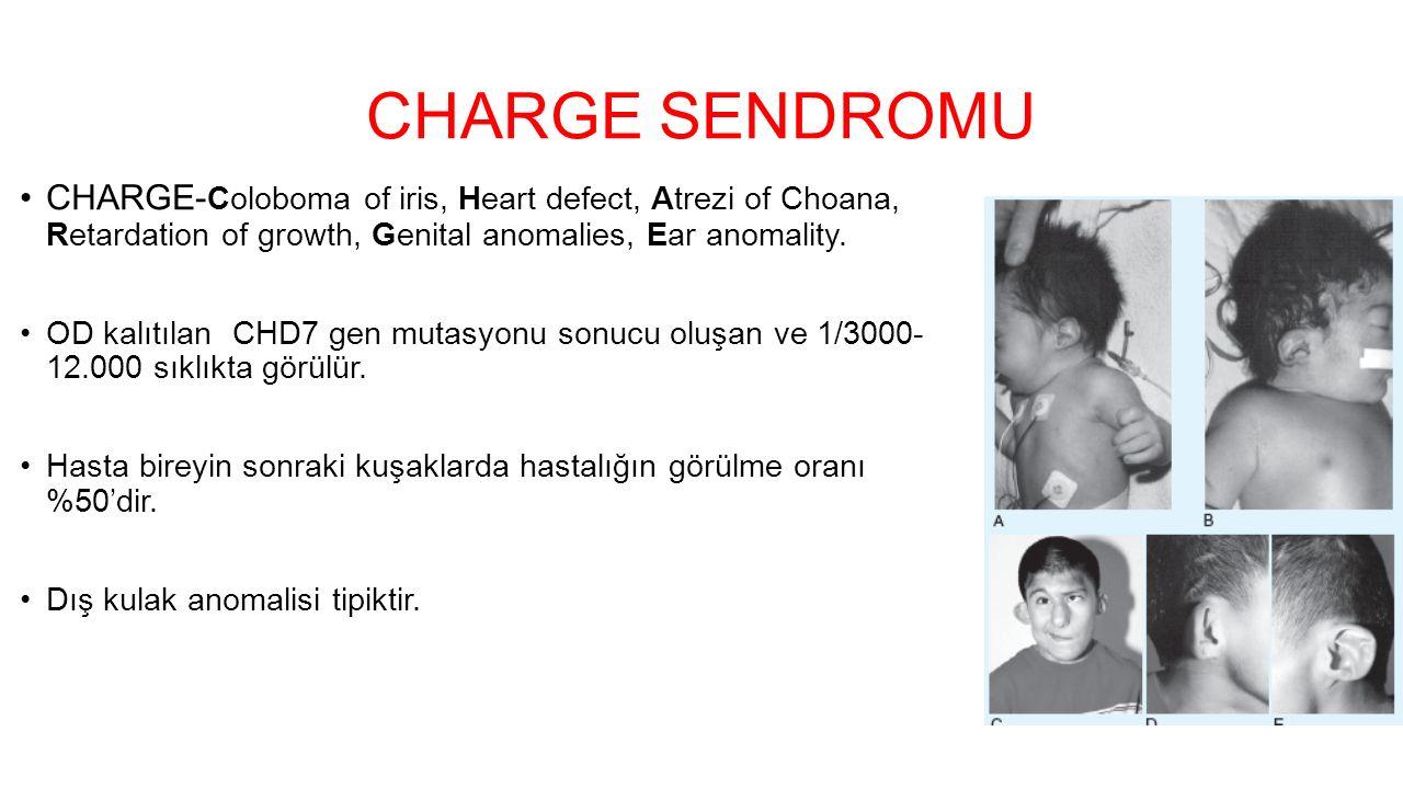 CHARGE SENDROMU CHARGE- Coloboma of iris, Heart defect, Atrezi of Choana, Retardation of growth, Genital anomalies, Ear anomality. OD kalıtılan CHD7 g