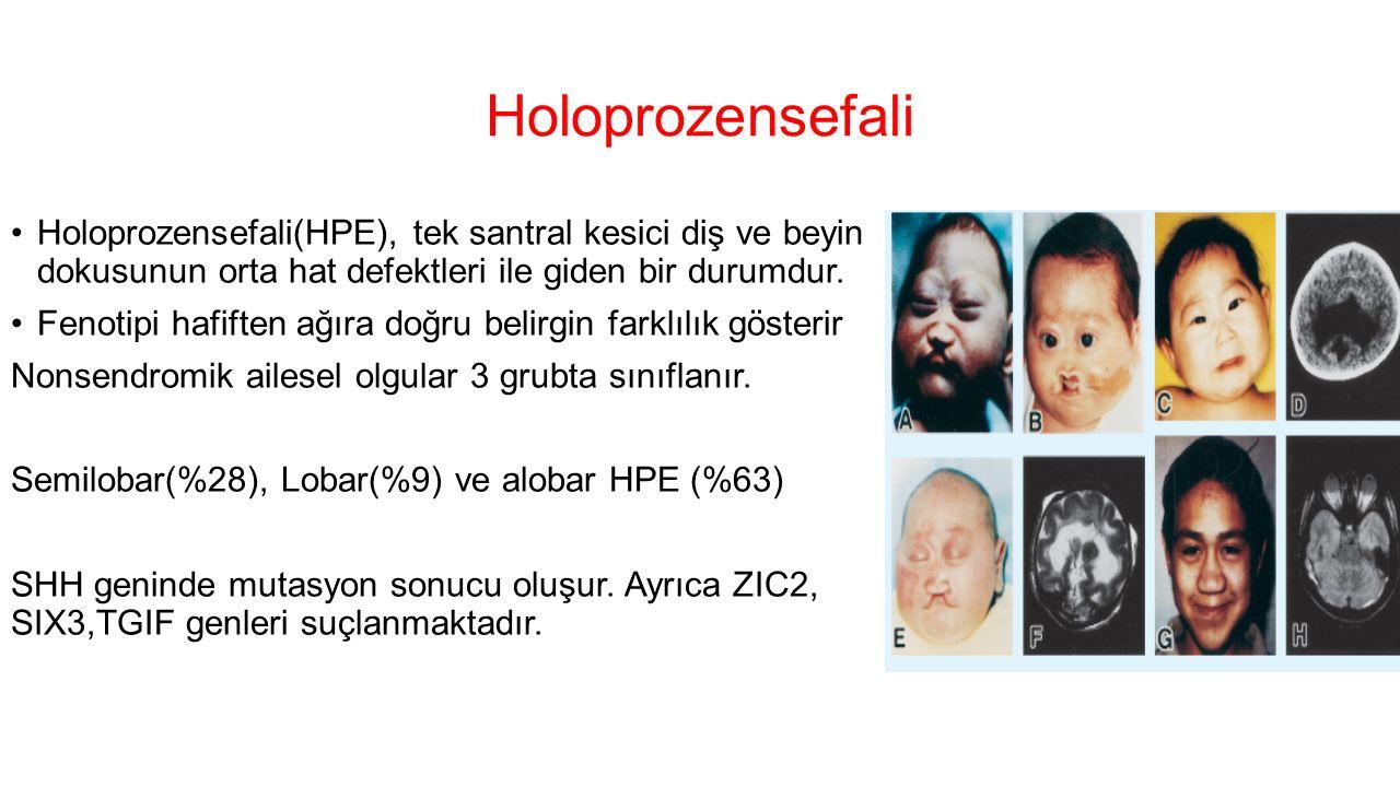 Holoprozensefali Holoprozensefali(HPE), tek santral kesici diş ve beyin dokusunun orta hat defektleri ile giden bir durumdur. Fenotipi hafiften ağıra