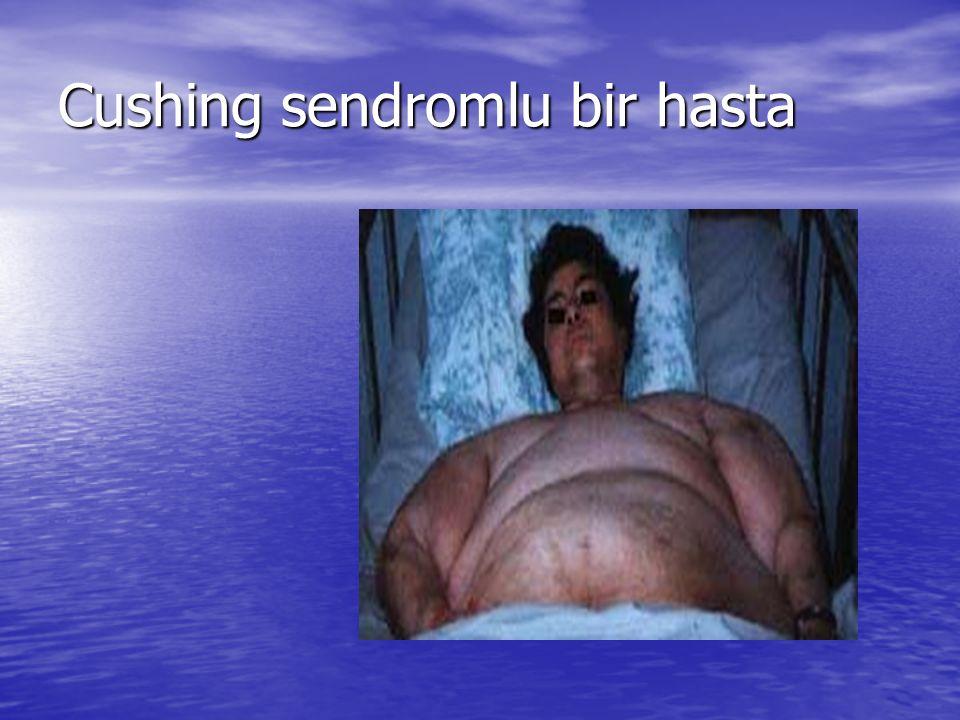 Cushing sendromlu bir hasta