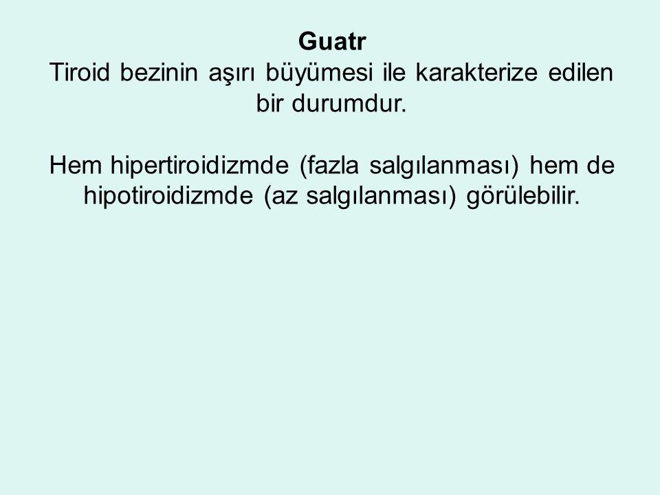 Guatr Tiroid bezinin aşırı büyümesi ile karakterize edilen bir durumdur.