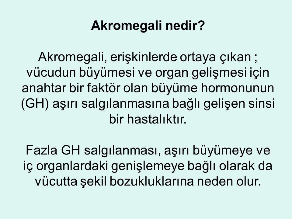 Akromegali nedir.