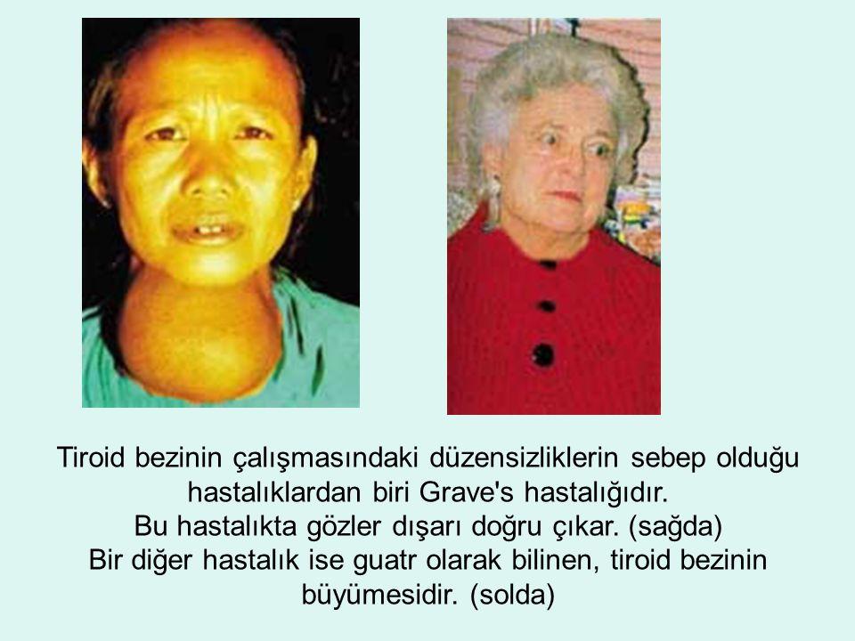 Tiroid bezinin çalışmasındaki düzensizliklerin sebep olduğu hastalıklardan biri Grave s hastalığıdır.