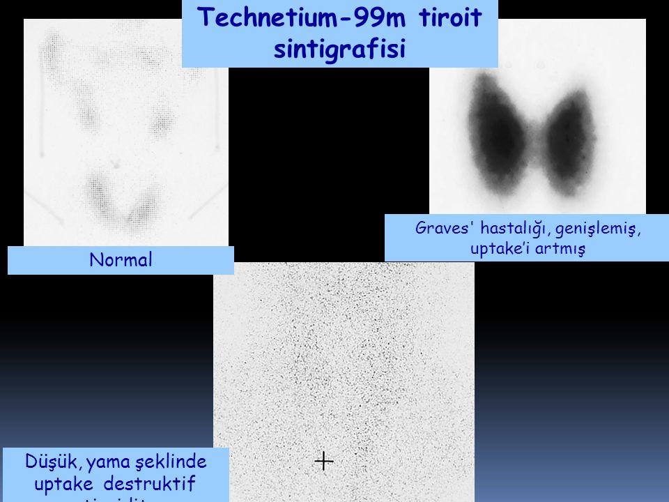 Technetium-99m tiroit sintigrafisi Düşük, yama şeklinde uptake destruktif tiroidit Normal Graves' hastalığı, genişlemiş, uptake'i artmış