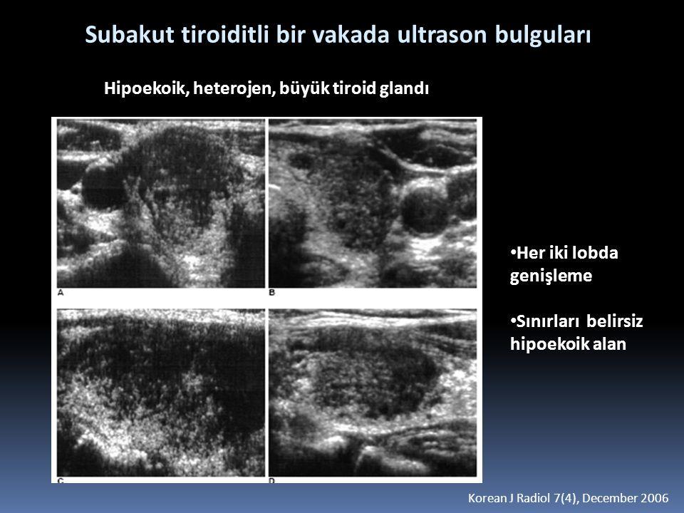 Subakut tiroiditli bir vakada ultrason bulguları Her iki lobda genişleme Sınırları belirsiz hipoekoik alan Korean J Radiol 7(4), December 2006 Hipoeko
