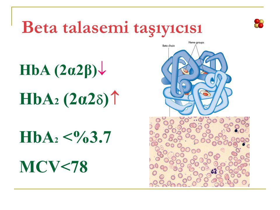 Beta talasemi taşıyıcısı HbA (2α2β)  HbA 2 (2α2  )  HbA 2 <%3.7 MCV<78