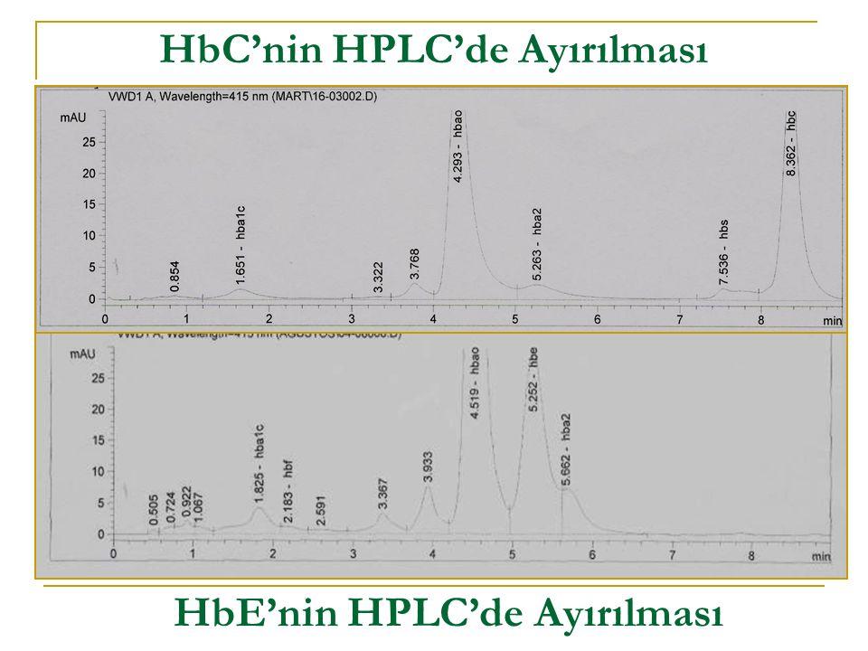 HbC'nin HPLC'de Ayırılması HbE'nin HPLC'de Ayırılması