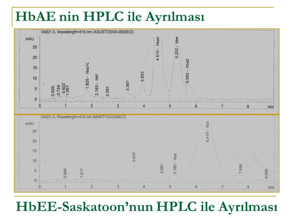 HbAE nin HPLC ile Ayrılması HbEE-Saskatoon'nun HPLC ile Ayrılması