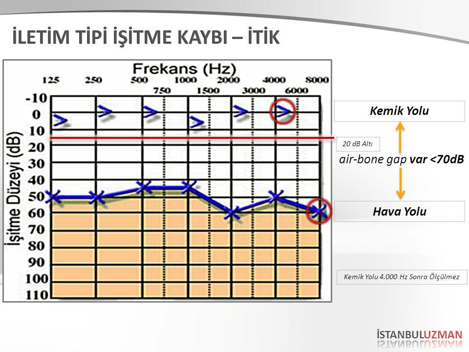 Kemik Yolu Hava Yolu air-bone gap var <70dB 20 dB Altı Kemik Yolu 4.000 Hz Sonra Ölçülmez
