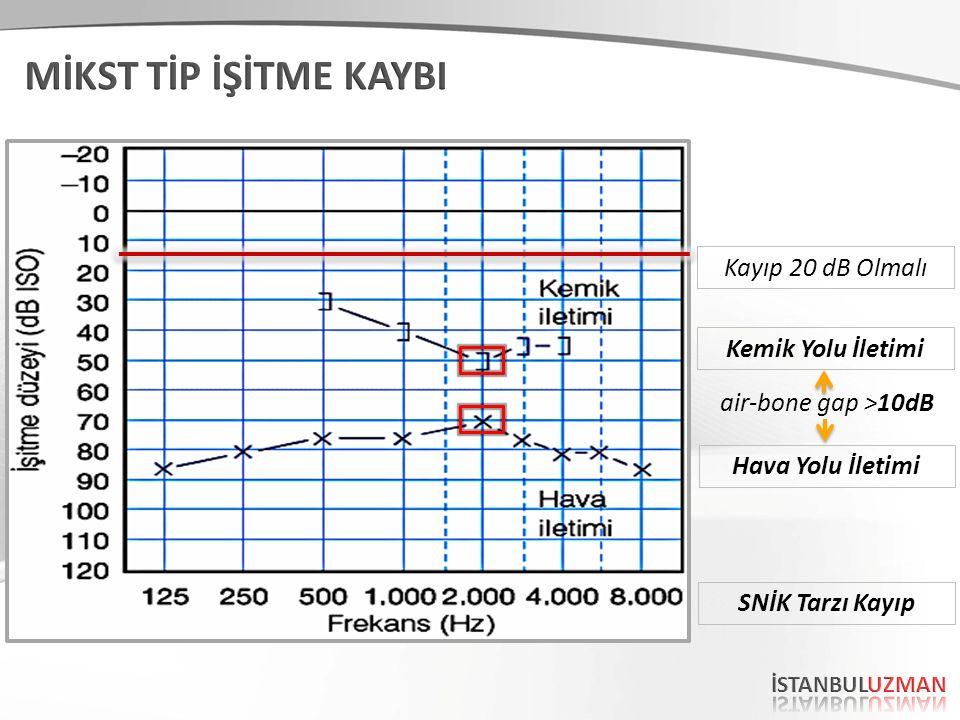 Kemik Yolu İletimi Hava Yolu İletimi air-bone gap >10dB Kayıp 20 dB Olmalı SNİK Tarzı Kayıp