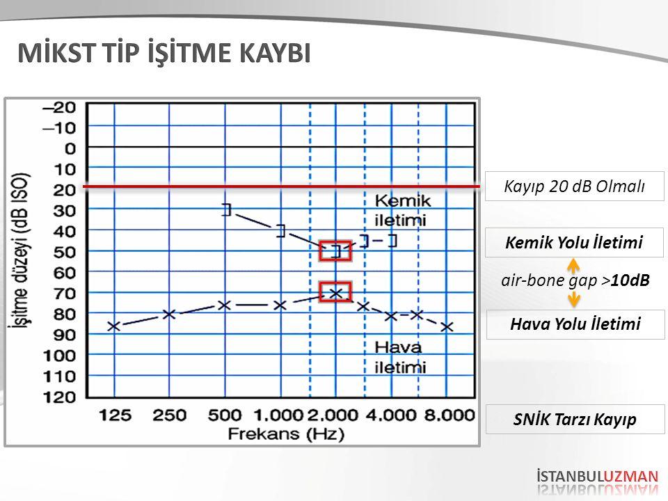 TANIMTANIM Odyometrik olarak; kemik yolu ve hava yolu eşikleri normal sınırların dışında (20 dB'den daha fazla) değişik derecelerde eşlik etmektedir.