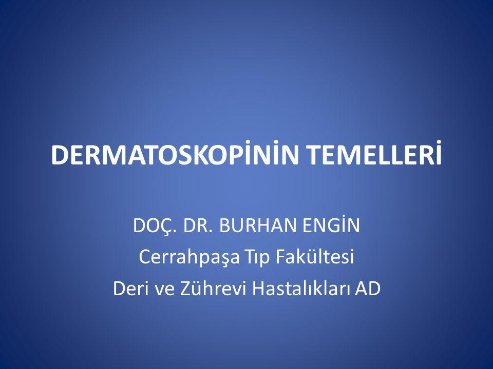 DERMATOSKOPİNİN TEMELLERİ DOÇ. DR. BURHAN ENGİN Cerrahpaşa Tıp Fakültesi Deri ve Zührevi Hastalıkları AD