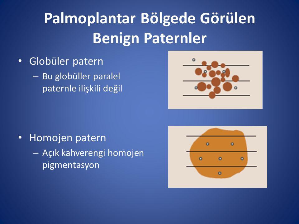 Palmoplantar Bölgede Görülen Benign Paternler Globüler patern – Bu globüller paralel paternle ilişkili değil Homojen patern – Açık kahverengi homojen