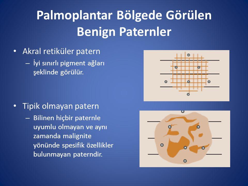 Palmoplantar Bölgede Görülen Benign Paternler Akral retiküler patern – İyi sınırlı pigment ağları şeklinde görülür. Tipik olmayan patern – Bilinen hiç