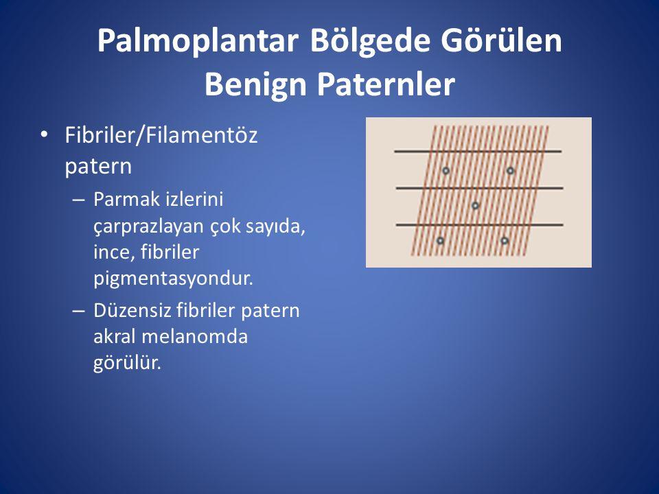 Palmoplantar Bölgede Görülen Benign Paternler Fibriler/Filamentöz patern – Parmak izlerini çarprazlayan çok sayıda, ince, fibriler pigmentasyondur. –