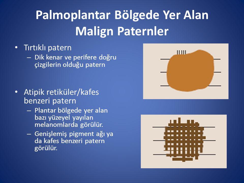 Palmoplantar Bölgede Yer Alan Malign Paternler Tırtıklı patern – Dik kenar ve perifere doğru çizgilerin olduğu patern Atipik retiküler/kafes benzeri p