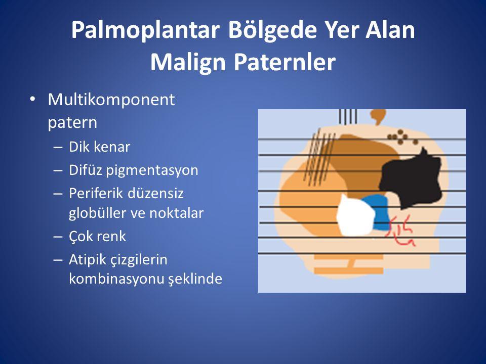 Palmoplantar Bölgede Yer Alan Malign Paternler Multikomponent patern – Dik kenar – Difüz pigmentasyon – Periferik düzensiz globüller ve noktalar – Çok