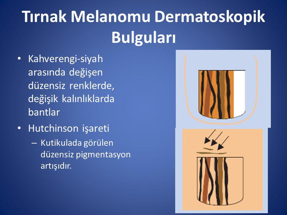 Tırnak Melanomu Dermatoskopik Bulguları Kahverengi-siyah arasında değişen düzensiz renklerde, değişik kalınlıklarda bantlar Hutchinson işareti – Kutik