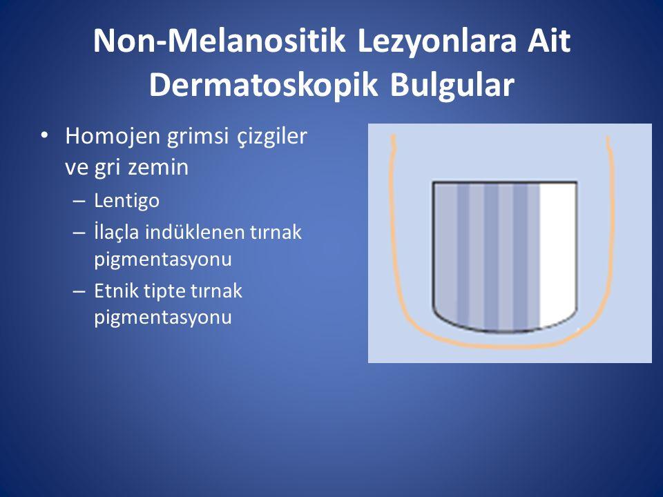 Non-Melanositik Lezyonlara Ait Dermatoskopik Bulgular Homojen grimsi çizgiler ve gri zemin – Lentigo – İlaçla indüklenen tırnak pigmentasyonu – Etnik