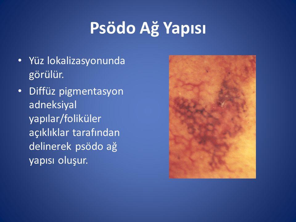 Psödo Ağ Yapısı Yüz lokalizasyonunda görülür. Diffüz pigmentasyon adneksiyal yapılar/foliküler açıklıklar tarafından delinerek psödo ağ yapısı oluşur.