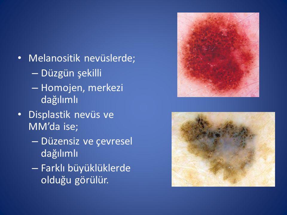 Melanositik nevüslerde; – Düzgün şekilli – Homojen, merkezi dağılımlı Displastik nevüs ve MM'da ise; – Düzensiz ve çevresel dağılımlı – Farklı büyüklü