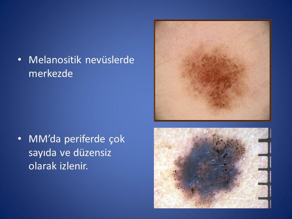 Melanositik nevüslerde merkezde MM'da periferde çok sayıda ve düzensiz olarak izlenir.