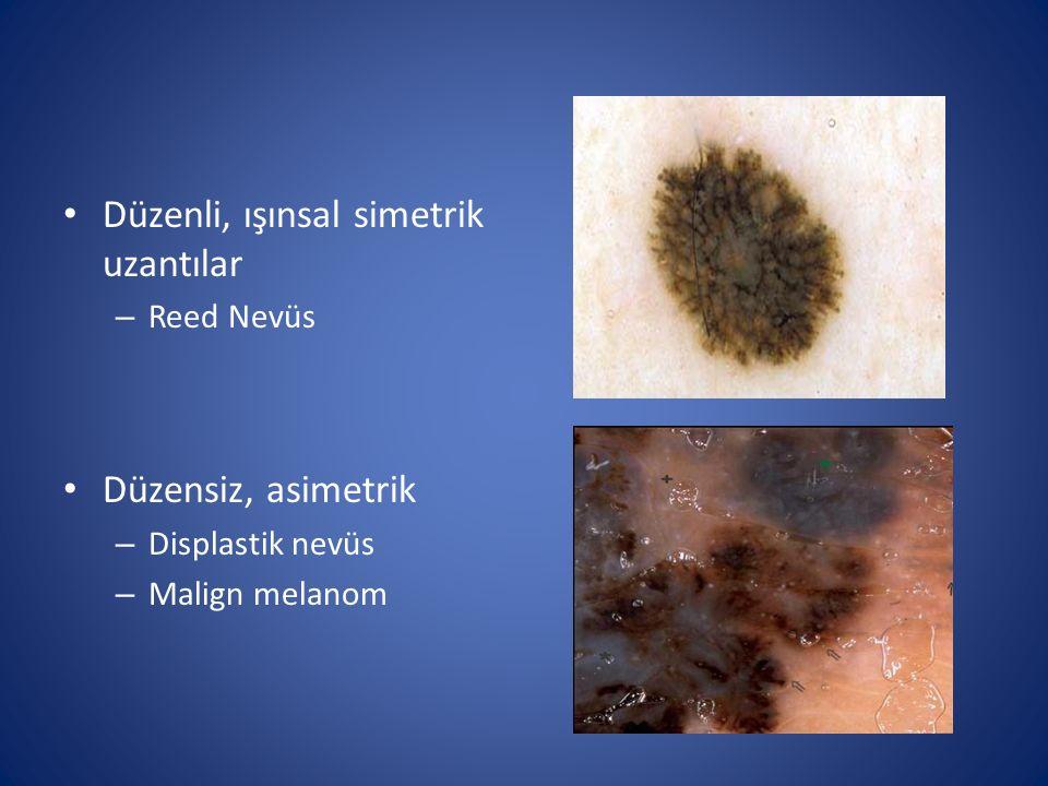 Düzenli, ışınsal simetrik uzantılar – Reed Nevüs Düzensiz, asimetrik – Displastik nevüs – Malign melanom