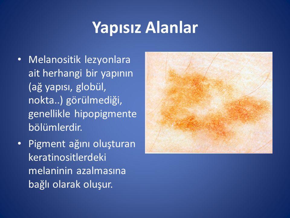 Yapısız Alanlar Melanositik lezyonlara ait herhangi bir yapının (ağ yapısı, globül, nokta..) görülmediği, genellikle hipopigmente bölümlerdir. Pigment